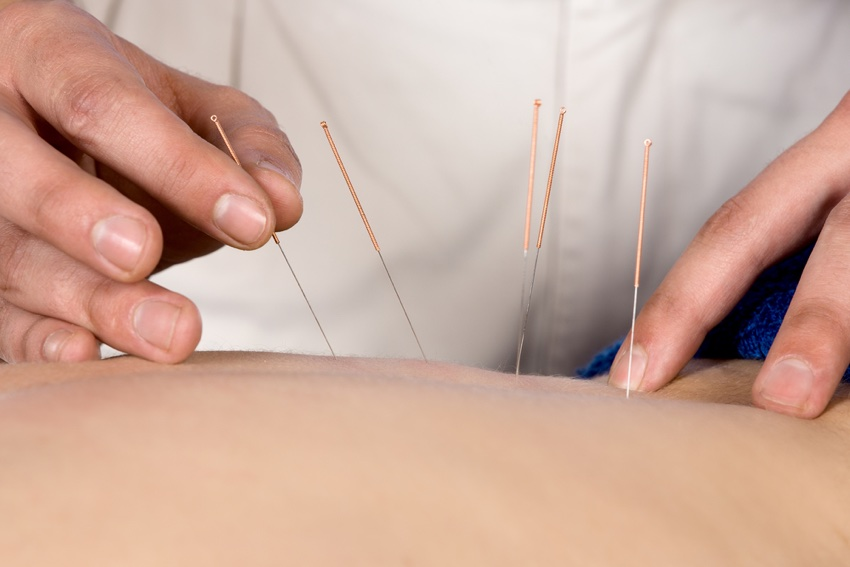 acupuncture service 850x567