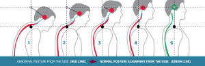 posturecorrection2